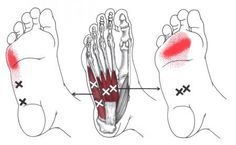 Flexor Digitorum Brevis (Foot) | The Trigger Point & Referred Pain Guide