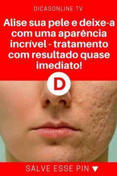 Alisar pele | Alise sua pele e deixe-a com uma aparência incrível - tratamento com resultado quase imediato! | O resultado, além de não demorar a aparecer, é realmente espetacular. Aprenda ↓ ↓ ↓