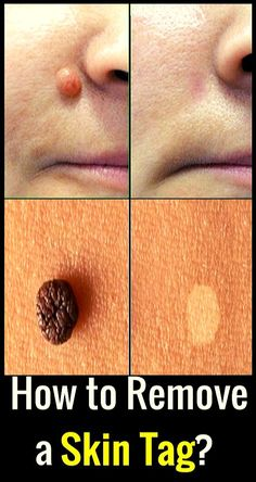 How to Remove Skin Tags, According to Dermatologists – must .- How to Remove Skin Tags, According to Dermatologists – must see this How to Remove Skin Tags, According to Dermatologists – must see this - Endocannabinoid System, Skin Tag Removal, Thinking Day, Group Boards, Invite Your Friends, Natural Remedies, Herbal Remedies, Health Remedies, Cold Remedies