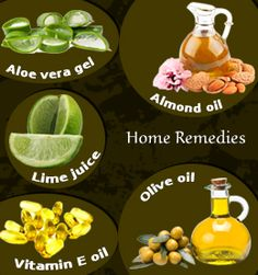 Home remedies to get rid of burn scars
