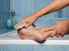 Избавление и лечение мозолей и натоптышей - http://www.doctorate.ru/how-deal-with-calluses/