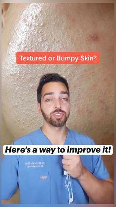 Brown Spots On Skin, Skin Spots, Brown Skin, Good Skin Tips, Healthy Skin Tips, Clear Skin Face, Face Skin, Top Skin Care Products, Skin Care Tips