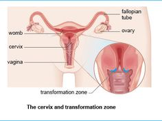 cervical cancer Vaginal Discharge: Common Reasons For Female Discharge Health Guru, Health Class, Health Trends, Health And Nutrition, Health Fitness, Health Tips For Women, For Your Health, Health And Beauty, Todays Reading