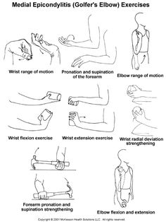 golfers elbow exercises | Sports Medicine Advisor 2003.1: Medial Epicondylitis (Golfer's Elbow ...