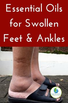 5 Essential Oils for Swollen Feet and Ankles Best essential oils for swollen ankles and feet that can help reduce swelling in your feet or ankles!Best essential oils for swollen ankles and feet that can help reduce swelling in your feet or ankles! Essential Oil For Swelling, Essential Oils For Pain, Doterra Essential Oils, Young Living Essential Oils, Essential Oil Diffuser, Essential Oil Blends, Essential Oils For Pregnancy, Essential Oils Circulation, Essential Oils For Addiction