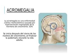 Lanzan campaña para detectar pacientes con #acromegalia   Acromegalia: cuando el espejo devuelve una fisonomía diferente.  Por eso la Asociación APEHI (Ayuda Pacientes con Enfermedad Hipofisaria) bajo el slogan Acá hay algo raro lanzó una campaña de concientización que se extenderá hasta febrero de 2017 con el apoyo del laboratorio Novartis y el auspicio de la Sociedad Argentina de Endocrinología y Metabolismo (SAEM) para poner el acento en los síntomas que aislados quizás pasan…