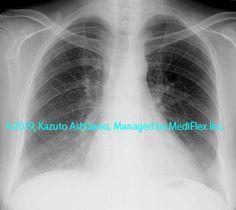 10. 間質性肺炎 症例091:非特異性間質性肺炎 胸部単純X線写真,『コンパクトX線アトラスBasic 胸部単純X線写真アトラス vol.1 肺』 Radiology