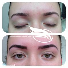 Cosmetic Tattoo of Eyebrows using the Hairstroke technique.