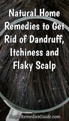 Natural Home Remedies to Get Rid of Dandruff, Itchiness and Flaky Scalp