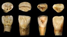 Strange fossils from China don't seem to fit any known hominin species. Could they be something new?