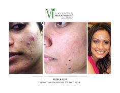 We love the Acne Vi Peel by Kalil for fighting acne & pigment issues at the same time! Great for all skin types.  Winter Park Laser offers Vi peels at our Orlando Medical Spa-www.winterparklaser.com