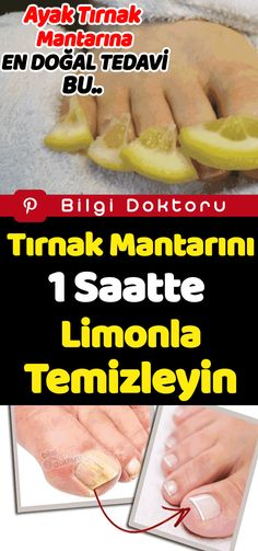 Clean the fungus with lemon in 1 hour - Nagellack .- Tırnak Mantarını 1 Saatte Limon İle Temizleyin – Nagellack – Clean Nail Fungus with Lemon in 1 Hour – Nagellack – # … – pflege – The Mushroom # - Nail Problems, Clean Nails, Fat Burning Drinks, Nail Fungus, Nail Treatment, Medicinal Plants, Diet And Nutrition, Fungi, Herbs