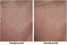 Last van grove poriën? In dit artikel vind je drie maskers die ervoor kunnen zorgen dat de poriën weer dichtgaan en minder zichtbaar worden.