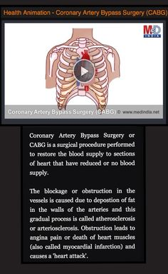 HEALTH ANIMATION- Coronary Artery Bypass Surgery (CABG). * * * CLICK IMAGE to vie animation and read more.