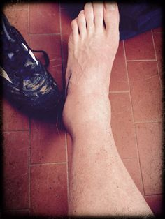 """ankle of a rugby player"""