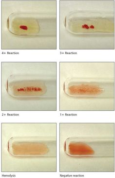 ~This is perfect~ Grading Agglutination Reactions