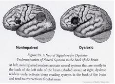 Dyslexia brain - neural signatures