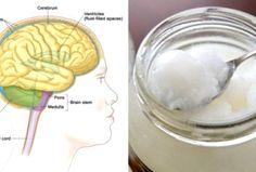 Kokosöl ist Supernahrung für dein Gehirn!