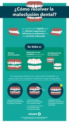 Estas son las causas de la maloclusión dental y cómo puedes resolverlo. No dudes en acudir al dentista.