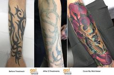 Thick black tribal can often be one of the most challenging tattoos to fade but following our aftercare and guidelines this client had amazing results.   @Deadmeat then went on to make this insane coverup!   Don't live with tattoos you don't love!   #tattooremoval #lasertattooremoval #allentown #allentownpa #lehighvalley #tattoos #tattoo #ink