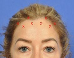 Woman with read x's drawn on forehead to show BOTOX Cosmetic placement. Botox Forehead, Forehead Lift, Botox Brow Lift, Eyebrow Lift, Botox Fillers, Dermal Fillers, Liquid Facelift, W Cosmetics, Botox Before And After