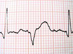 How to Calculate a 6 Second Rhythm Strip on an EKG