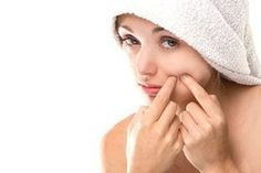 Want to get rid of acne? Know the causes of acne and keep your skin acne free and glowing. Here are some useful tips to prevent acne or pimples. Pimples On Chin, Pimples On Forehead, Pimples Under The Skin, How To Get Rid Of Pimples, Get Rid Of Blackheads, Blackhead Remedies, Pimples Remedies, Blackhead Remover, Cystic Acne Treatment