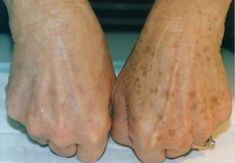 """""""Age spots"""" or """"liver spots"""" are tan, flat, black or brown spots on the skin, which may vary in size. They can appear on the hands, arms, face, and shoulders. Mainly on the areas which are mostly exposed to the sun. Even though they mostly appear on the skin of people who are older than […]"""
