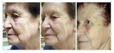 Get these results by using L.E.D light therapy!
