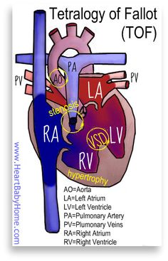 Tetralogy.of.Fallot.HeartBabyHome.light by HeartBabyHome, via Flickr