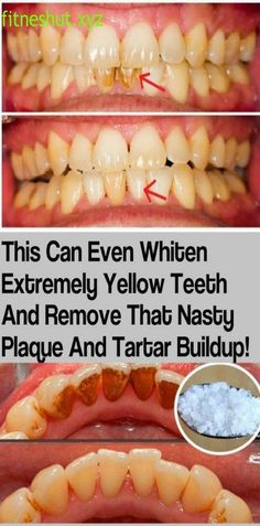 THIS CAN EVEN WHITEN EXTREMELY YELLOW TEETH AND REMOVE THAT NASTY PLAQUE AND TARTAR BUILDUP
