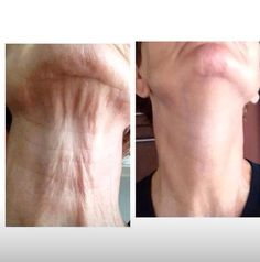 Rodan and Fields Amp MD roller!! Check out these amazing results!!