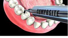 22 Best Dentist images | Dental care, Dental services