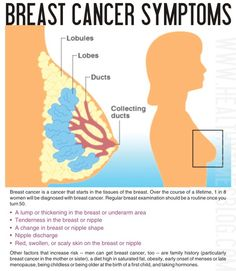 Warning Signs of Breast Cancer: Symptoms, Diagnosis, and More