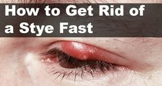How to Cure a Stye at Home