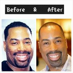 """Dr. Keith R. Harley Jr. is definitely walking the walk! """"Man oh Man, what a difference a product makes..LOL TFF, Skinlogics Clear and the Microderm Apeel with BC Micro-derm brush are my Best Friend.."""" Yes, Men love BeautiControl and need it too. www.bcspashop.com let me help you today not tomorrow!"""