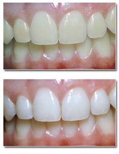 Natural Teeth Whitening Remedies Free teeth whitening for PPO patients in Ovilla, TX. Teeth Whitening Procedure, Best Teeth Whitening Kit, Whitening Skin Care, Teeth Whitening Remedies, Natural Teeth Whitening, Smile Whitening, Cosmetic Dentistry Cost, Baking Soda Teeth, Teeth Bleaching