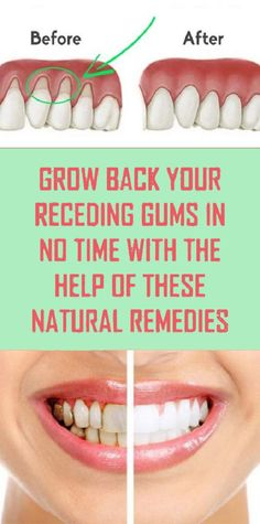 Grow Back Your Receding Gums In No Time With The Help Of These Natural Remedies … - Mundhygiene Natural Remedies For Allergies, Natural Headache Remedies, Natural Remedies For Anxiety, Health And Wellness Quotes, Health And Fitness Tips, Health Advice, Health Articles, Oral Health, Dental Health