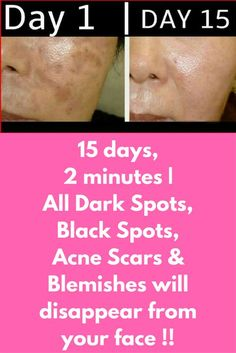 15 days, 2 minutes | All Dark Spots, Black Spots, Acne Scars & Blemishes will disappear from your face !! This is a very simple natural treatment that will take only 2 minutes for preparation and in just 15 days will give you a new look that is flawless, much brighter and lighter. To prepare this natural remedy you will need just 2 ingredients that are easily available in every home 1 tbsp coconut oil …