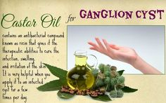 21 Ways On How To Treat A Ganglion Cyst Naturally At Home