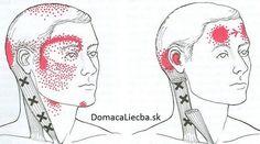 Mapa tváre: Podľa akné odhaľte choroby a oslabené orgány Severe Headache, Tension Headache, Headache Relief, Referred Pain, Migraine Attack, Jaw Pain, Trigger Point Therapy, Vitamin Deficiency, Headache Remedies