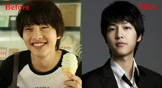 Song Joong Ki Plastic Surgery Before and After