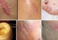 Pinoy Health Tips offers the quick, fast, simple, and easy yet effective step by step natural home remedies on a daily basis. Scar Cream, Scar Removal Cream, Beauty Secrets, Diy Beauty, Beauty Hacks, Natural Treatments, Skin Treatments, Scar Treatment, Skin Care