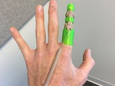 3D printed prosthetic - the designer came up with his own after losing finger in motorcycle accident