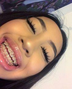 She has braces Cute Braces Colors, Cute Girls With Braces, Dental Braces, Teeth Braces, Dental Care, Braces Smile, Braces Tips, Getting Braces, Invisible Braces