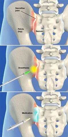 A sacroiliac joint steroid injection procedure is performed to relieve pain caused by arthritis in the sacroiliac joint where the spine and hip bone meet. The steroid medication can reduce swelling and inflammation in the joint.  http://www.southeasternspine.com/procedures-treatments/sacroiliac-joint-steroid-injection/