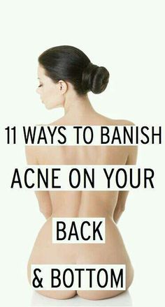 """Loving this sweet little tip: """"Have you Got Acne On Your Back And Bottom? Here Is The Solution"""""""