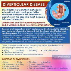 32 Best Diverticular Disease And Diverticulitis Images Health