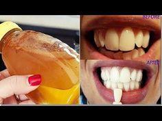 Diş Hekimleri Bunun Bilinmesini İstemiyor, Diş Beyazlatmak İçin En Hızlı ve Güvenilir Yöntem - YouTube