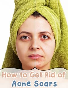 How to Get Rid of Acne Scars - nbeautytips.com